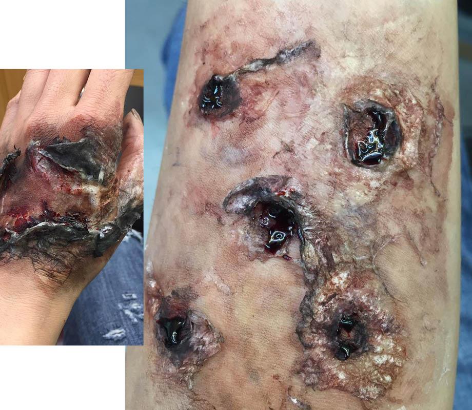 burned sfx skin effect by Blanche Macdonald Pro Makeup Program Graduate April Pangilinan
