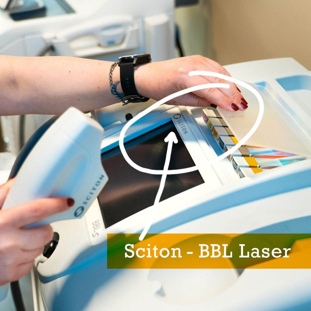 Advanced Skin Specialist Christina Makrodimitras working with Sciton BBL Laser machine